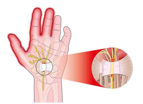 Артрит на пръстите на ръката лечение