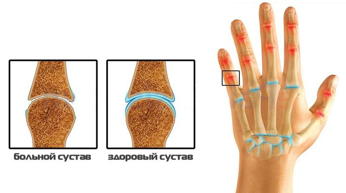 Как да се лекува артрит на ставите на пръстите? | Болки в ставите
