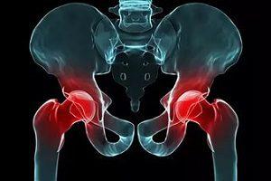 Народни средства срещу болки в ставите