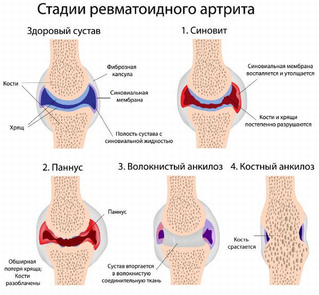 Успешно лечение на ревматизъм и ревматоиден артрит с Аюрведа