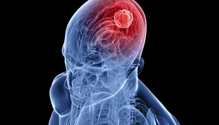 Болка в мускулите и ставите на цялото тяло: причини и..