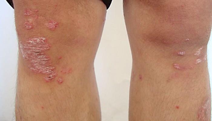 Как се лекува псориатичен артрит?