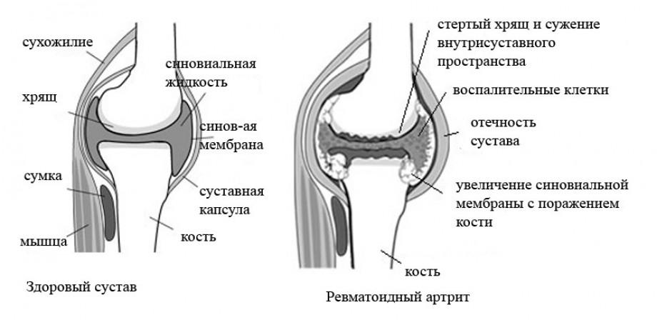Ревматоиден артрит духовна причина