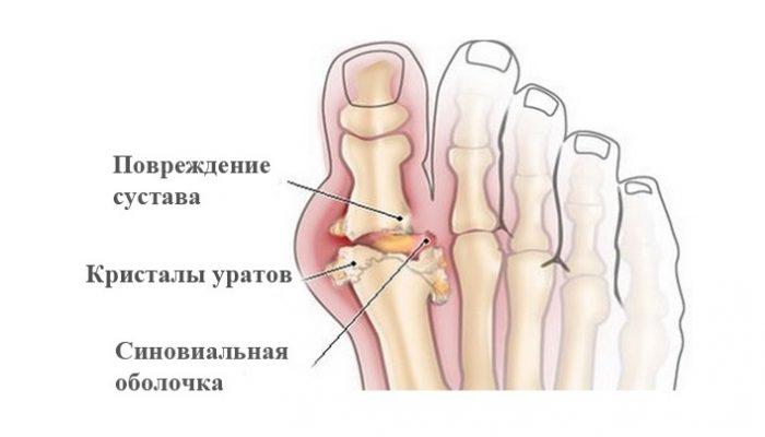 Ранни признаци на артрит | orientandoo.com
