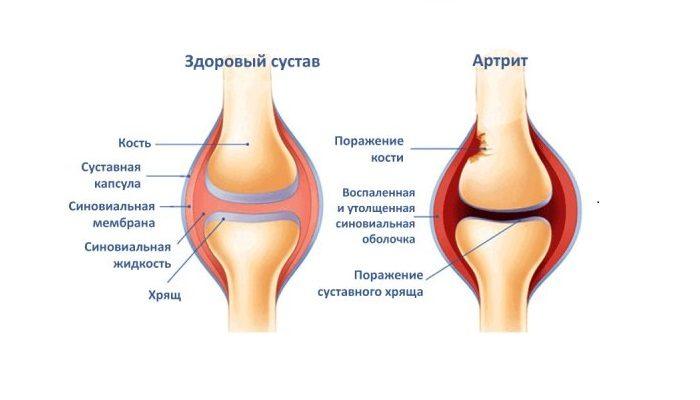 Юношески пауциартикуларен артрит лечение