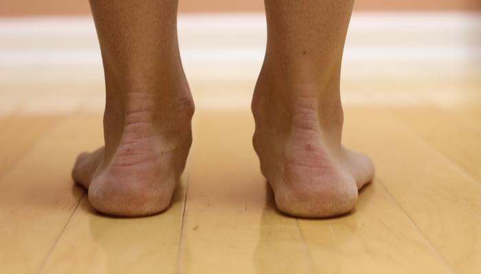Видове плоски крака, симптоми, лечение, профилактика..