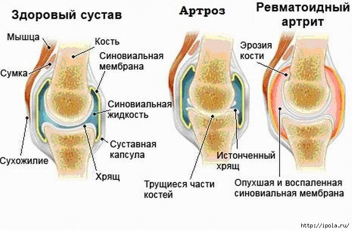 Пукат ли ставите при ревматоиден артрит