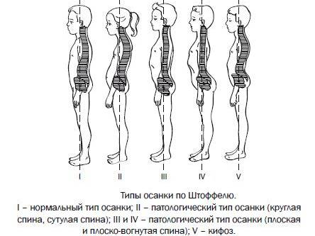 Причини и лечение на плосък гръб при дете - Болки в ставите