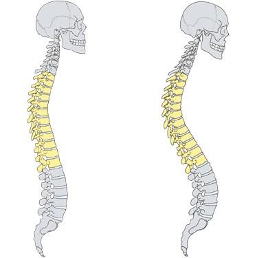 Болки в ставите и костите и как да се справим с тях?