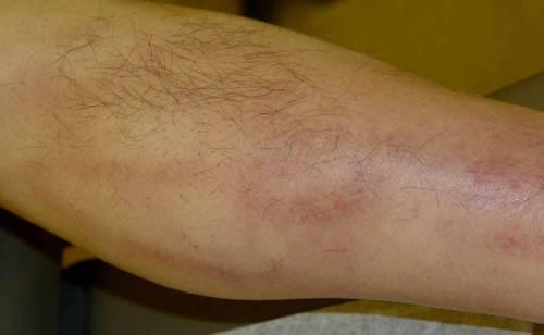 Болка в коляното? Причини и натурални средства за лечение