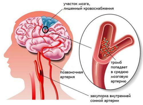 Болка в главата врата и рамото