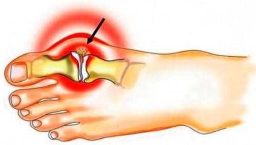 Крака на пръстите на краката - Болки в ставите