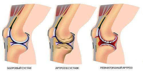 Екстензия на крака при псориатичен артрит