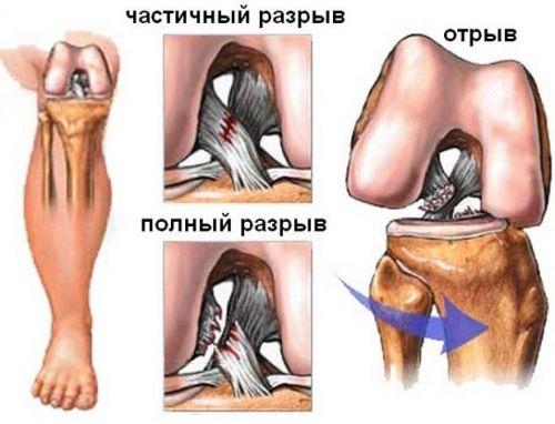 Болка в коляното през нощта