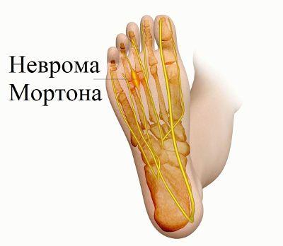 Болка в малкия пръст на крака - Болки в ставите