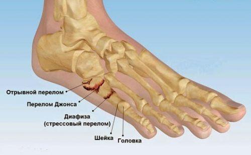 Болка в метатарса на крака - Болки в ставите