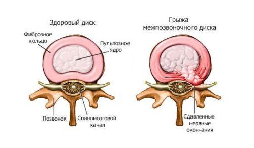 Болка в рамото и предмишницата