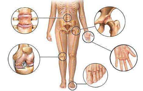 Хроничен ревматоиден артрит