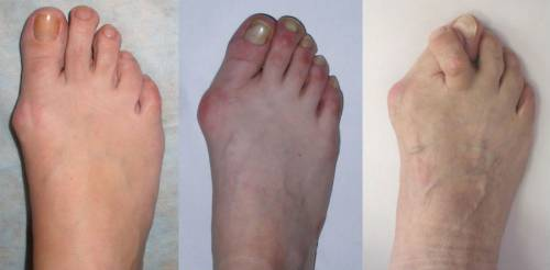 Лечение на артрит на големия пръст: как да се лекува пръстите на краката