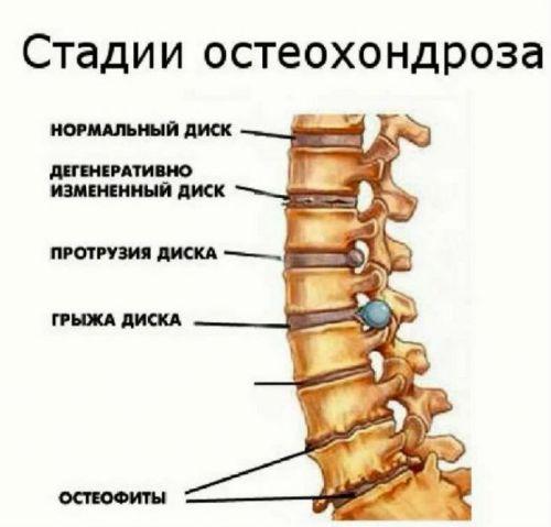 Cervicobrachialgia и неговото лечение - Болки в ставите