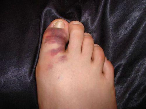 Характеристики на фрактура на големия пръст - Болки в ставите
