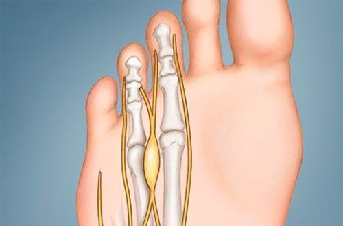 Неврома на крака - Болки в ставите