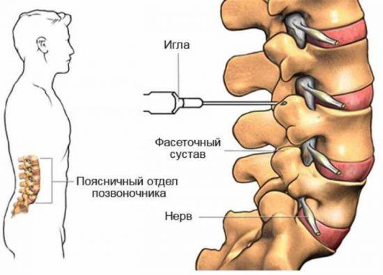 Гонартроза: ефикасните лекарства, диета и упражнения. Протези, операция – orientandoo.com