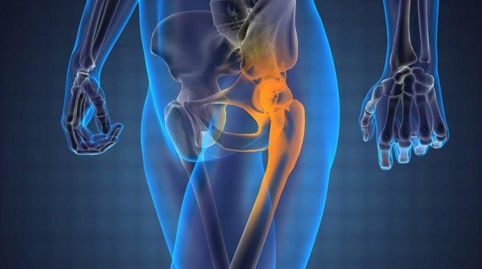 Болка в тазобедрената става, даваща на крака: условия..