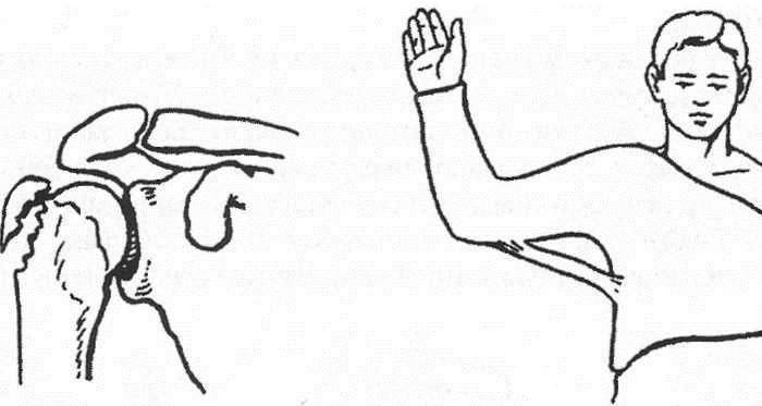 Фрактура на голямата туберкулоза на раменната кост..