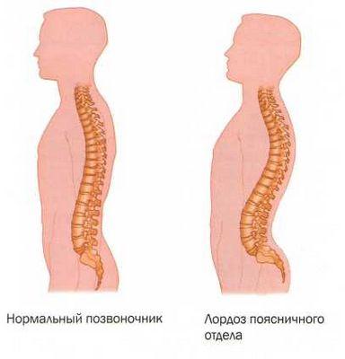 Лордозата и кифозата на гръбнака са - Болки в ставите