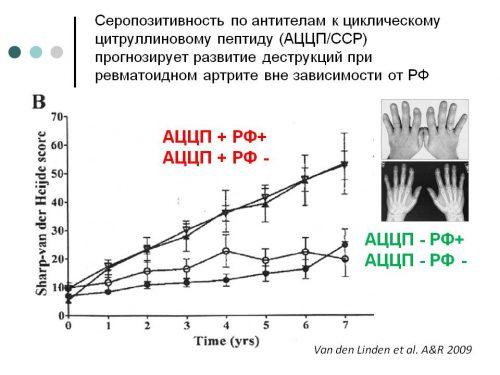 Класификационен критерии за ревматоиден артрит
