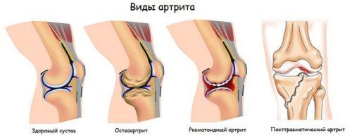 Ревматоиден артрит при деца: симптоми и лечение на дете