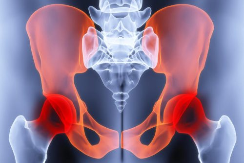 Болки в ставите и костите и как да се справим с тях? | Билкови продукти Health Again