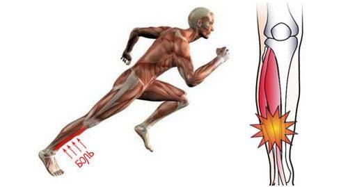 Характеристики на възпаление на периотема на гръдния кош и..