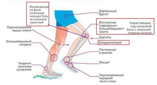 Хранителни добавки при артроза на хрущяла на коляното