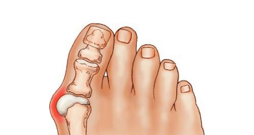 Народни методи за освобождаване от камък на крака - Болки..