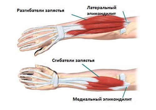 Болки в рамото след фитнес