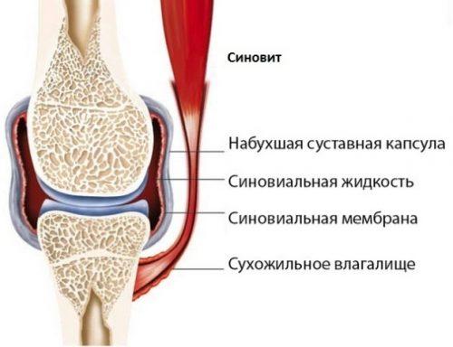 Гонартроза на колянната става: симптоми и лечение | Болки в ставите