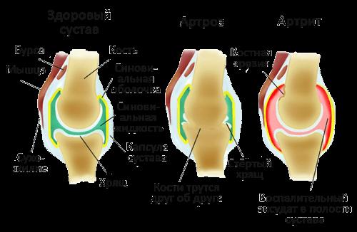 Полиневропатия - Симптоми | Компетентно за здравето на Move&Flex