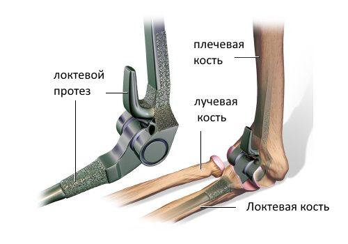 Как се извършва артропластиката на лакътя? - Болки в ставите