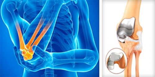 Как се лекува артрит с билки