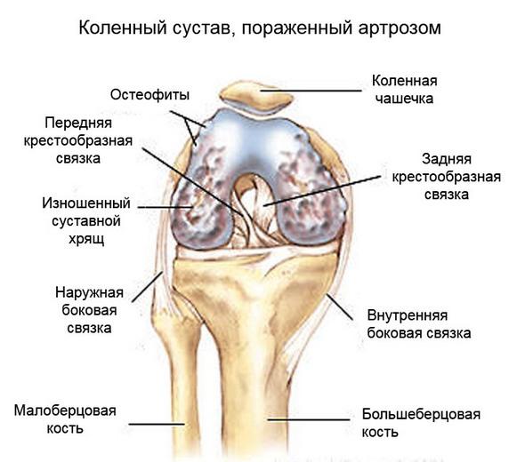 Артроза на колянната става, симптоми, диагностика, лечение