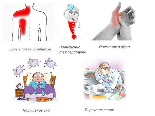 Препарати за лечение на брахитов периартрит - Болки в ставите