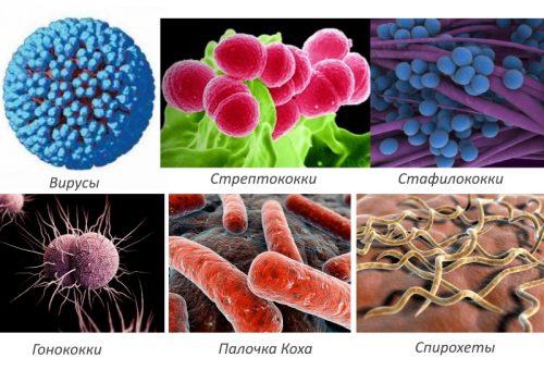 Ранни симптоми на ревматоиден артрит | orientandoo.com