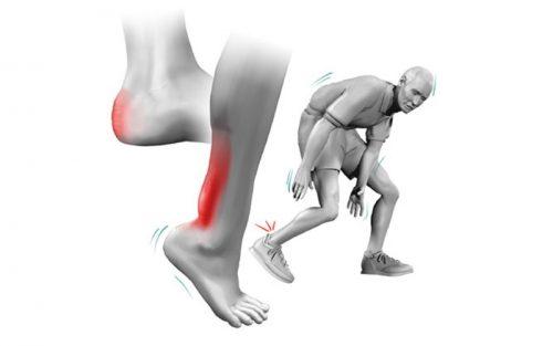 Защо болката в хълбока се предава в крака