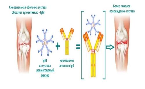 Хроничен ювенилен артрит при деца: лечение и симптоми
