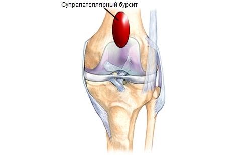 Болки в коляното - 10 причини и успешни лечения - Move&Flex