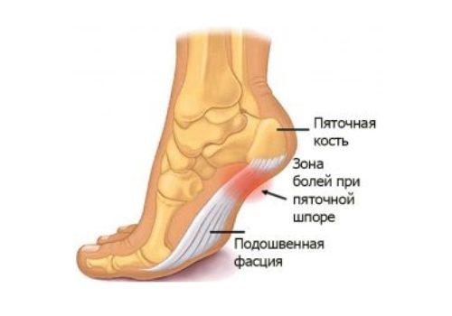 Лечение на артрит на пръстите на краката