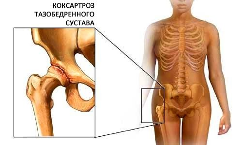 Лечение при грипен артрит болки в ставите