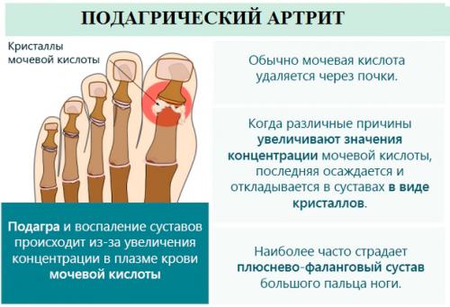 Подагра (подагрозен артрит): какви са симптомите и лечението
